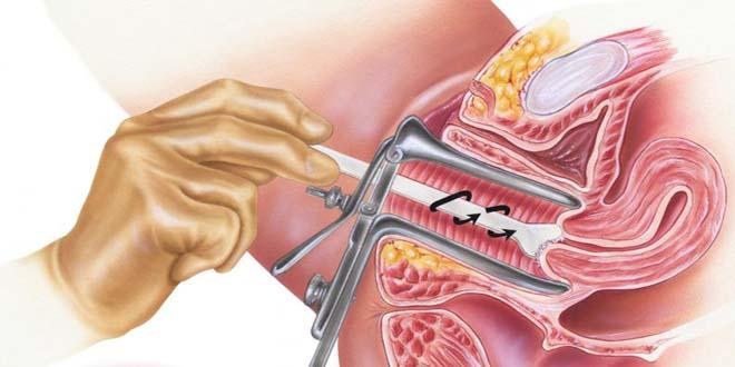 Chia sể kiến thức về tầm soát ung thư cổ tử cung 1