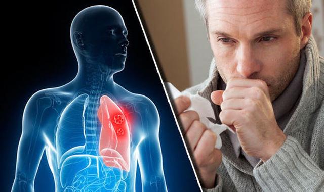 Tầm soát ung thư phổi để có cuộc sống khỏe mạnh, trường thọ 2