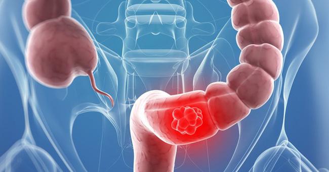 Bạn đã biết đến nội soi đại tràng sigma chưa? 1