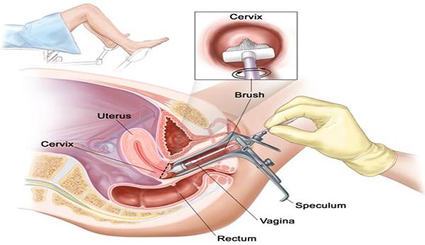 Chị em nên biết khi nào thì cần phải nội soi cổ tử cung 1