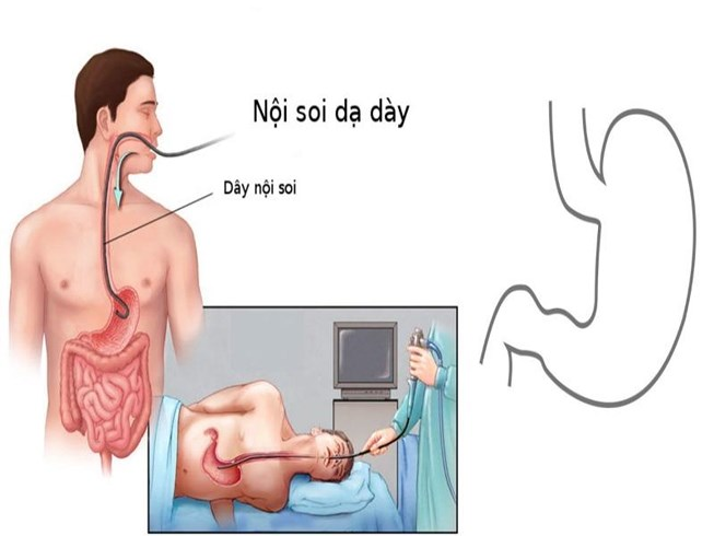 Diễn biến quá trình nội soi dạ dày như thế nào? 1