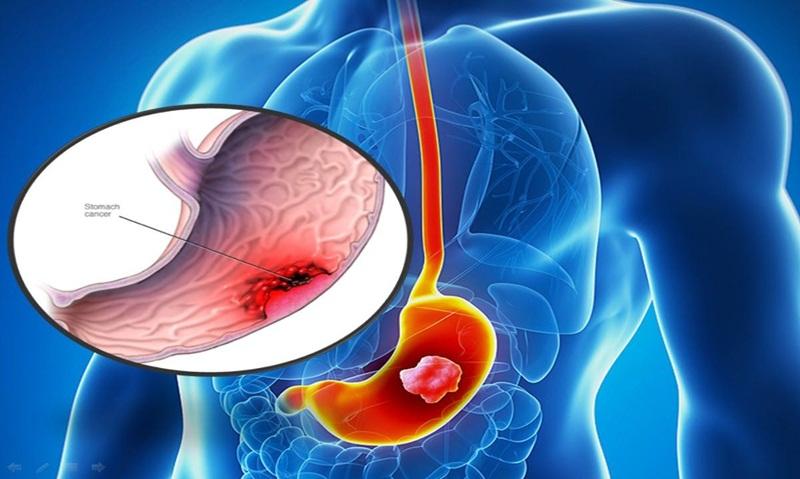 Nội soi dạ dày có phát hiện ung thư không? Giải đáp từ bác sĩ