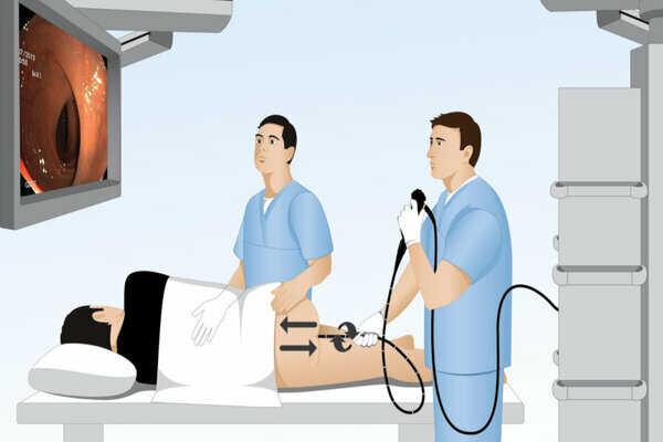 Trước khi nội soi trực tràng nên chuẩn bị những gì?